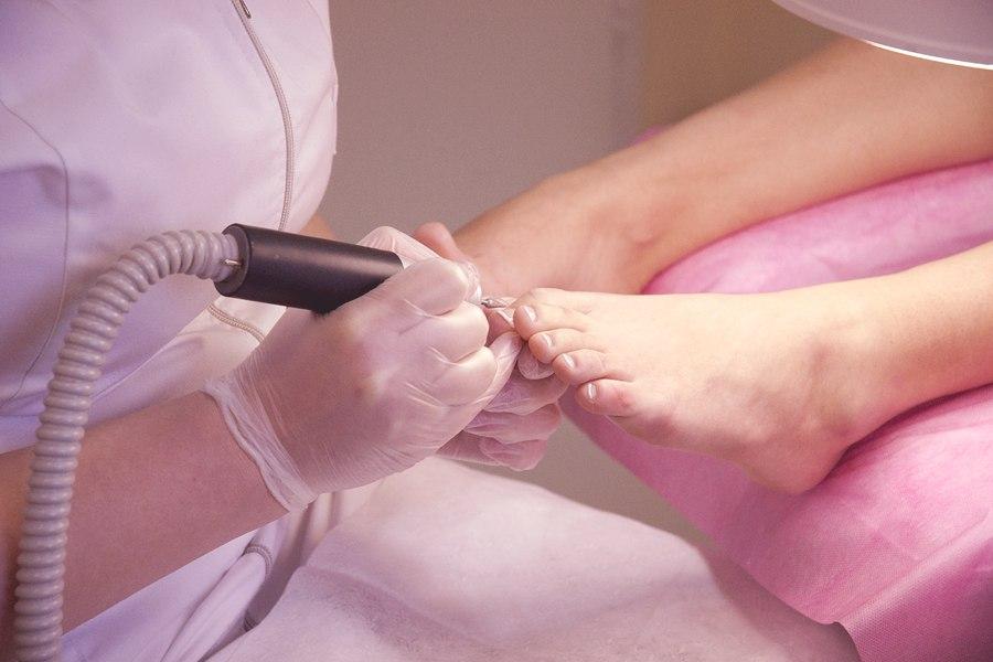 Аппаратная чистка ногтей при грибке
