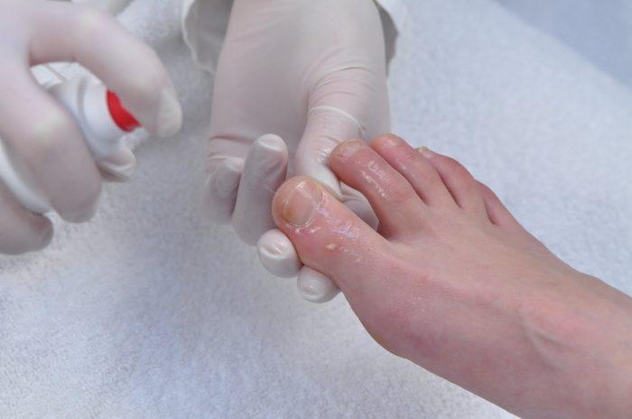Грибок ногтей хозяйственное мыло