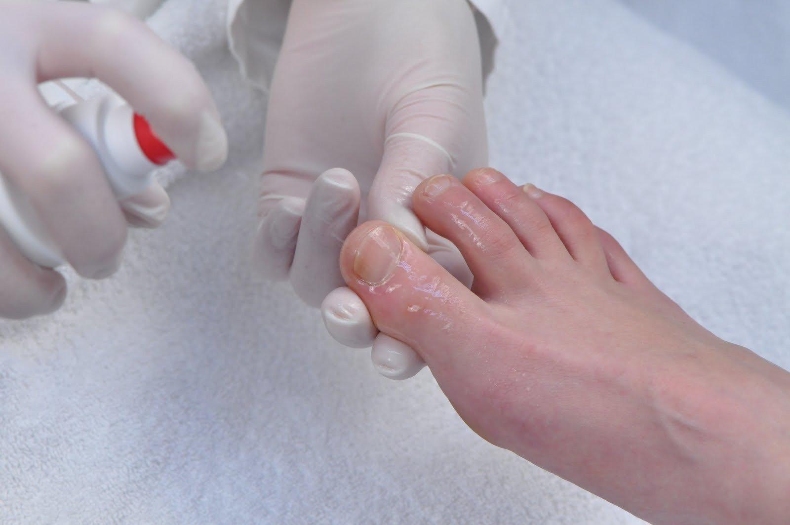 Лечение грибка ногтей содой и хозяйственным мылом