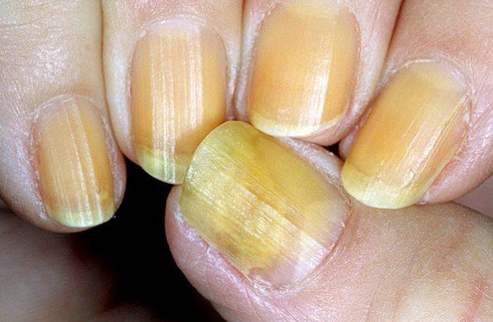 грибковое заболевание ногтей