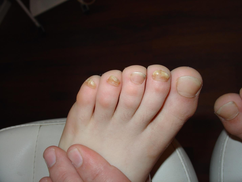 Перекись от грибка ногтей на руках