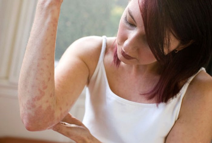 От чего появляется псориаз на теле и как возникает