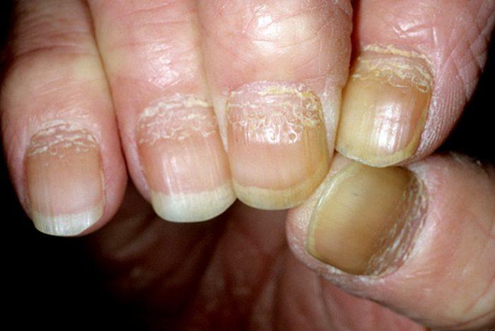 псориаз ногтя