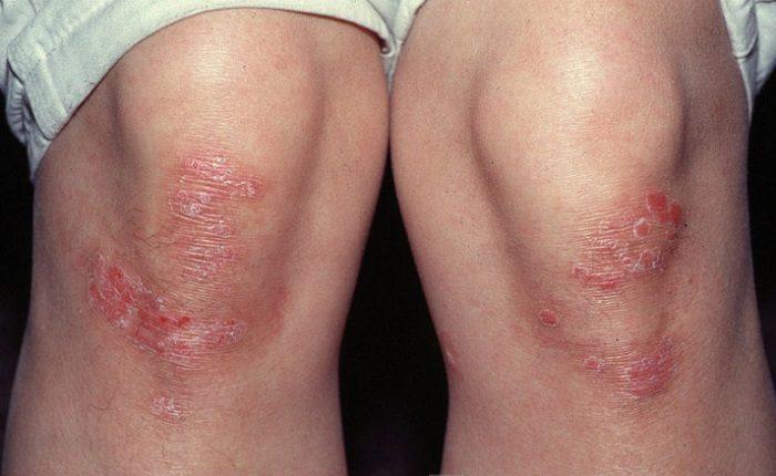 причины развития кожной болезни