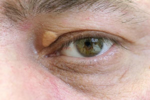 Причины цвета глаз