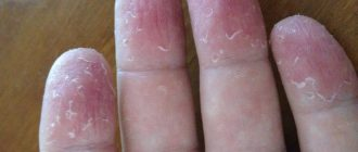 у ребенка шелушится кожа на пальцах