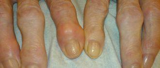 шишки на пальцах рук