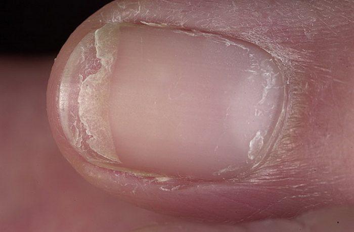 отслоения ногтевой пластины