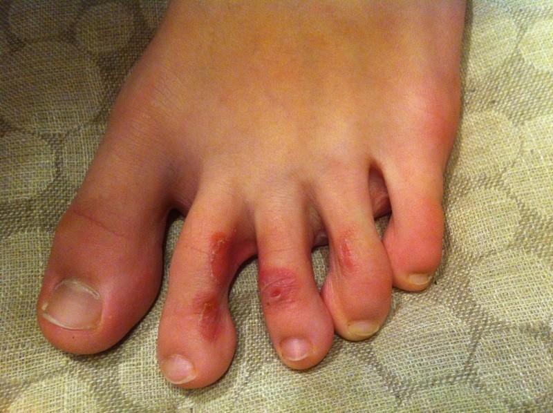Водянистые пузырьки на пальцах ног чем лечить