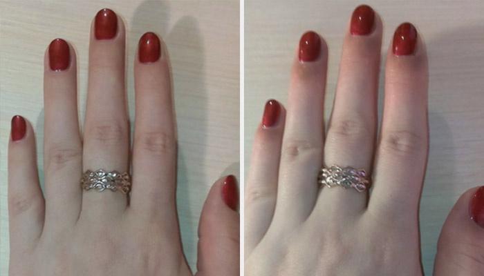 Как избавиться от аллергии на шеллак на пальцах