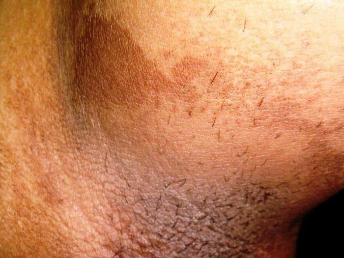 кожная болезнь под названием эритразма