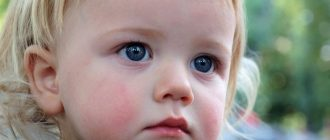 причины диатеза у ребенка