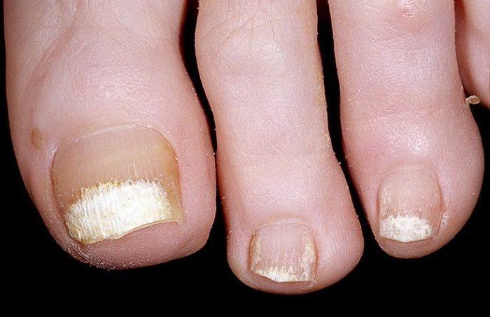 причины «побеления» ногтевой пластины