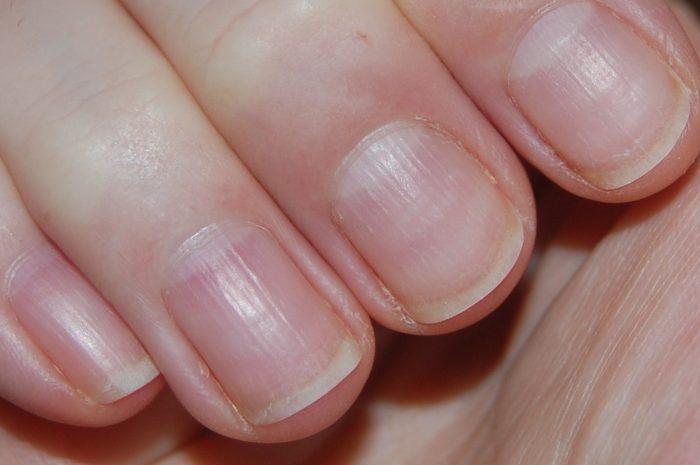 ребристые ногти
