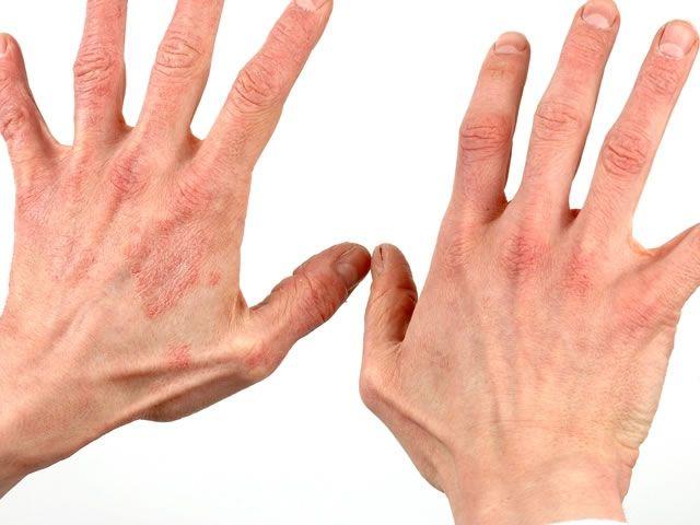 Как выглядит дерматит на руках Причины и лечение у взрослых и детей