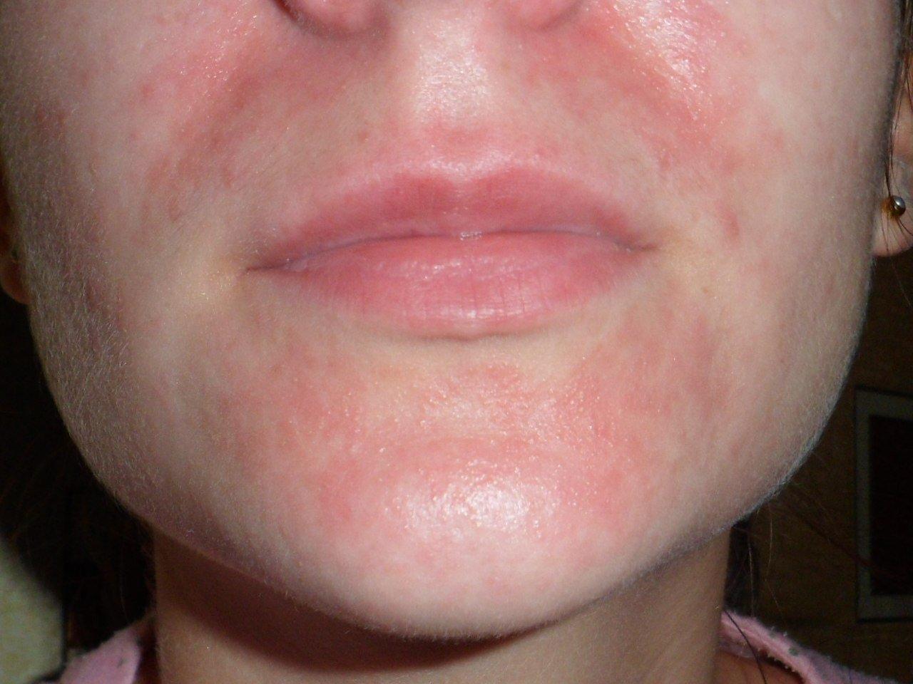 Дерматит на лице у детей или взрослых