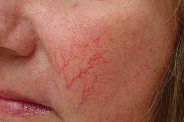 причины близко расположенных сосудов на лице