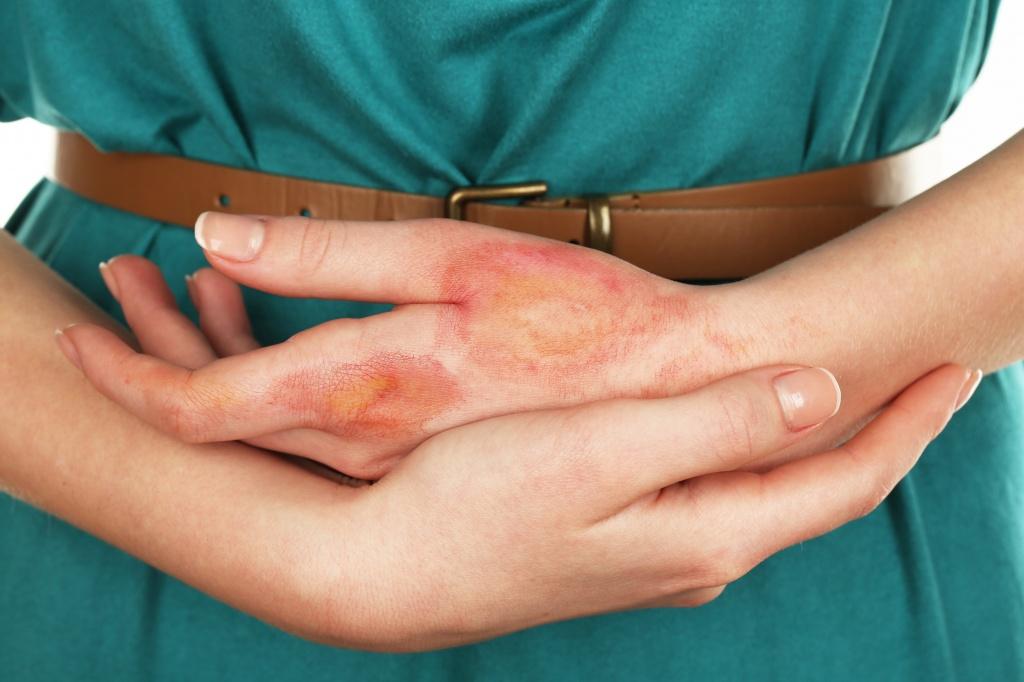 Ожог уксусом и эссенцией на коже: что делать и чем лечить