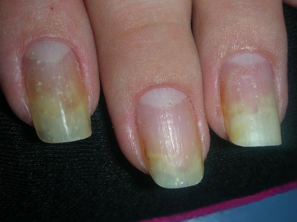 причины изменений ногтевой пластины