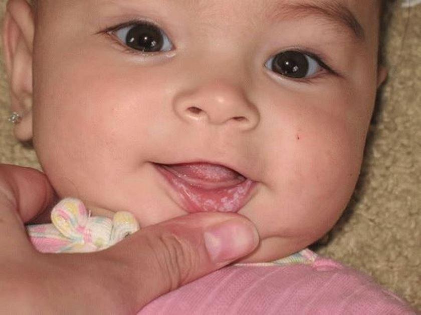 Молочница у месячного ребенка во рту симптомы