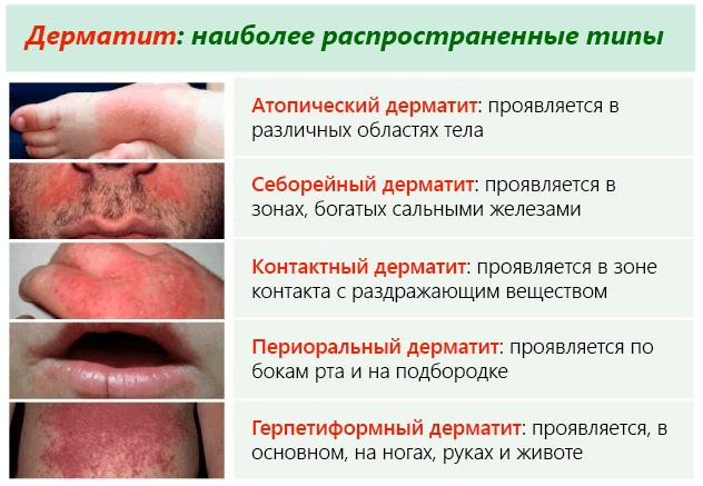 разновидности дерматитов