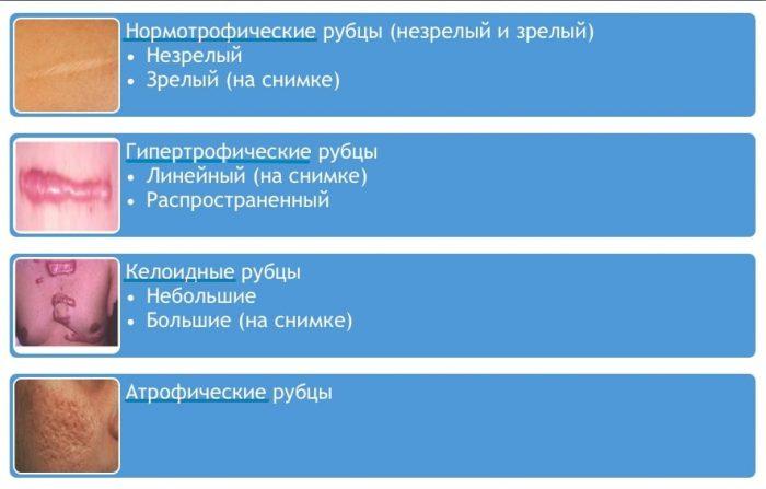 классификация рубцов