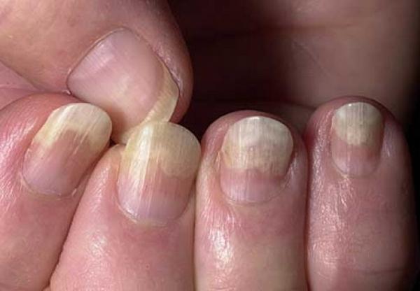 локальное поражение ногтей грибком