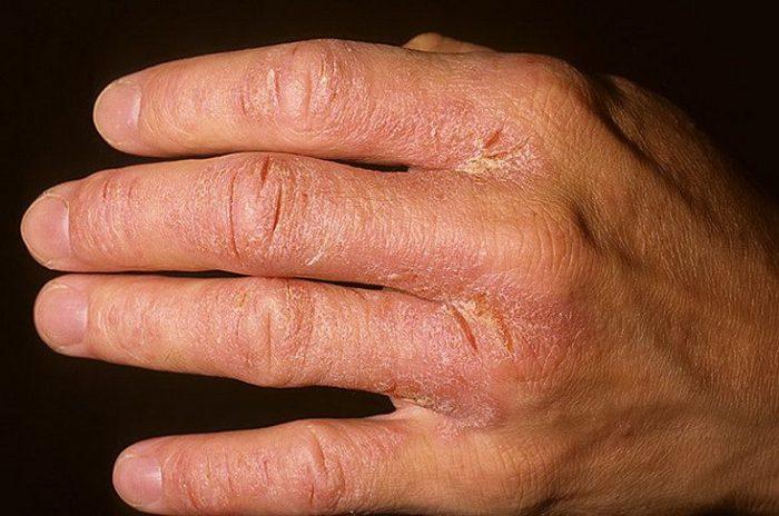 покраснение на руках из-за экземы