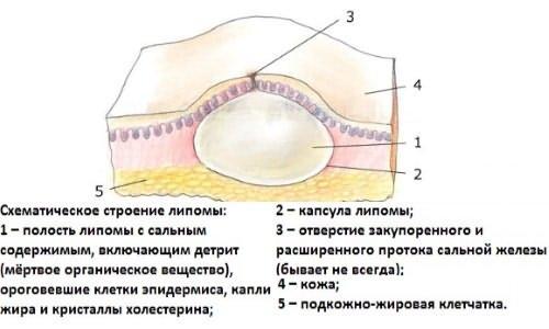 формирование жировика на носу и лице