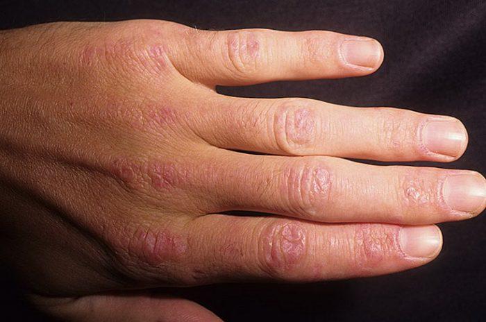 клиника диффузных форм кератодермии