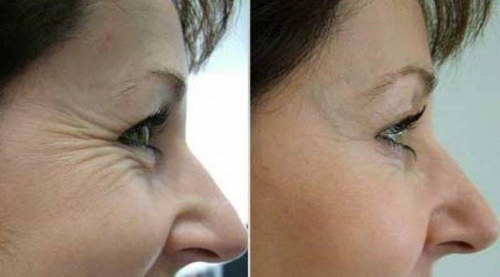 дерматологи подтверждают отличные результаты