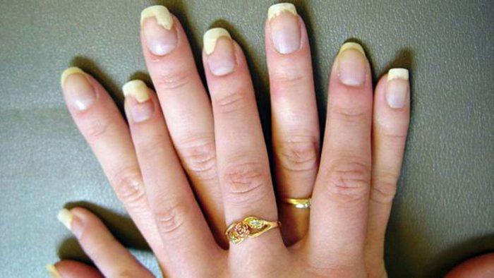 симптомы грибковой инфекции