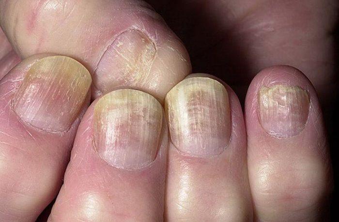 зараженная ногтевая пластина