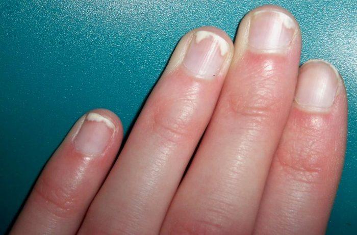 на ногтевой поверхности появляются папулы