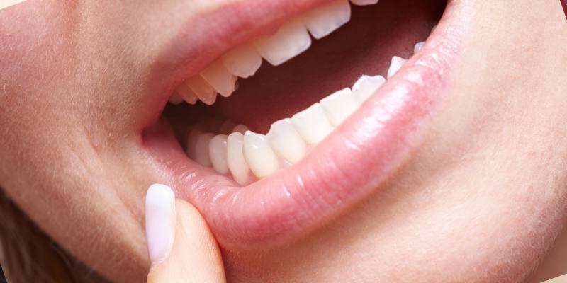 Молочница во рту и влагалище одновременно