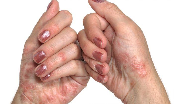 дерматологическое заболевание