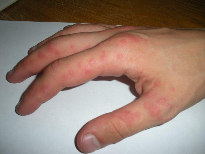 раздражение кожи между пальцами рук