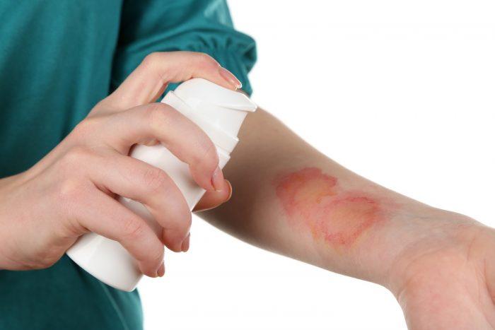 незначительные поражения кожи