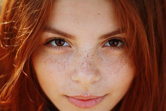 веснушки на лице