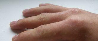 образования аллергической природы