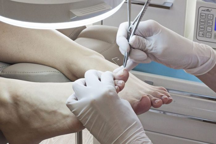 удаление ногтя на ноге механическим способом