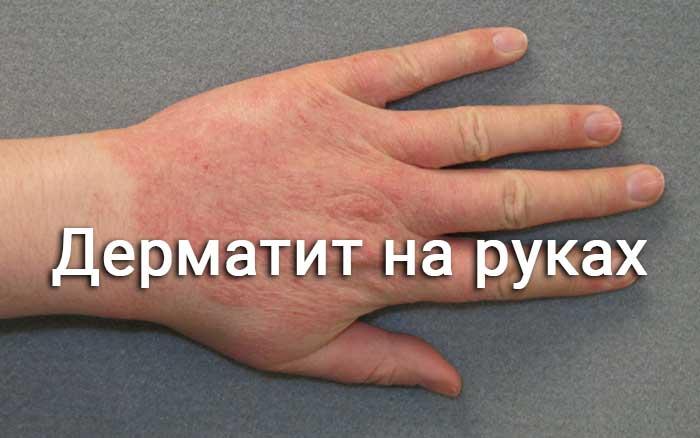 Дерматит на руках контактный: причины и лечение болезни