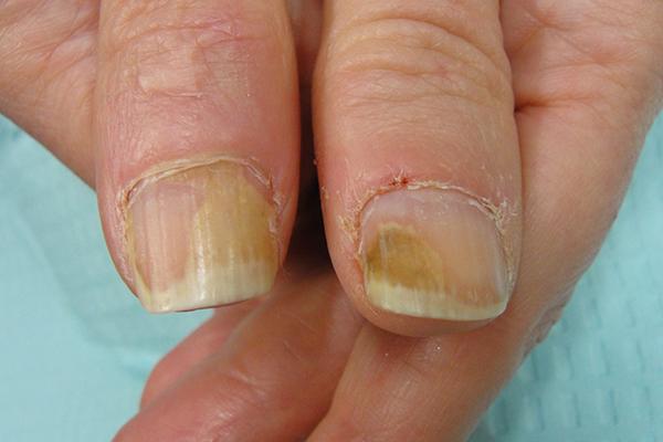 разновидность дистрофии ногтевых пластин