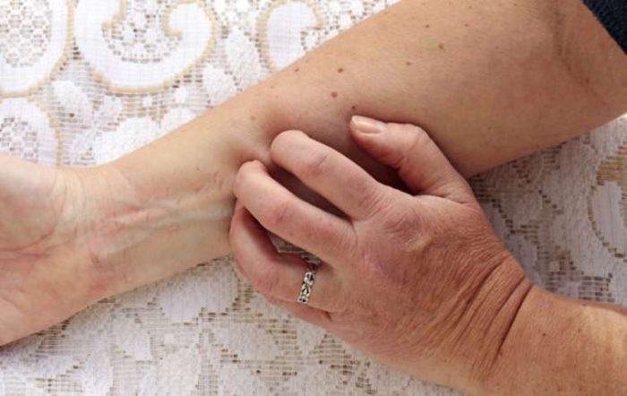 общие симптомы дерматита