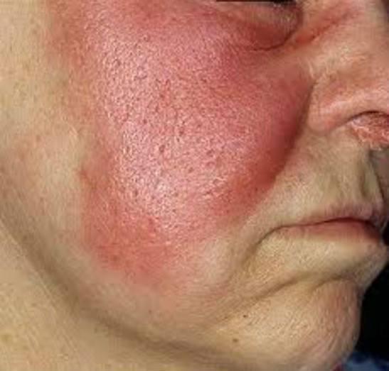 фрагмент воспаления на лице
