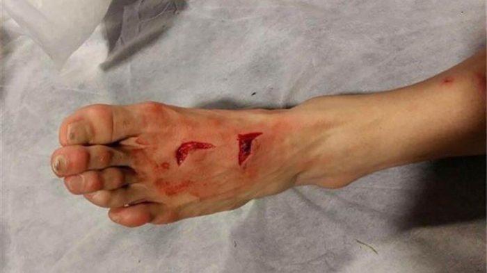 открытые раны на теле