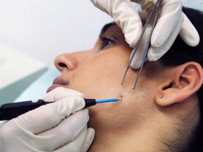 способы удаления липомы на лице
