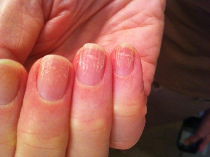 грибковые инфекции ногтя