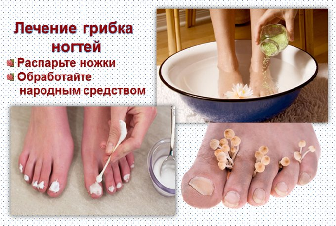 народный рецепт против грибка