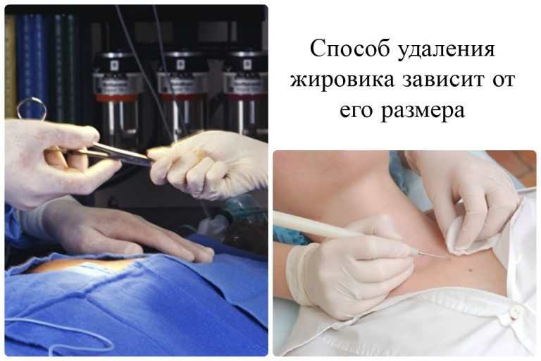 Удаление липомы хирургическим путем видео